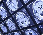 brain-MRI