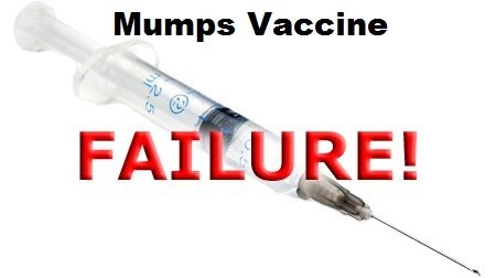 mumps_vaccine_failure