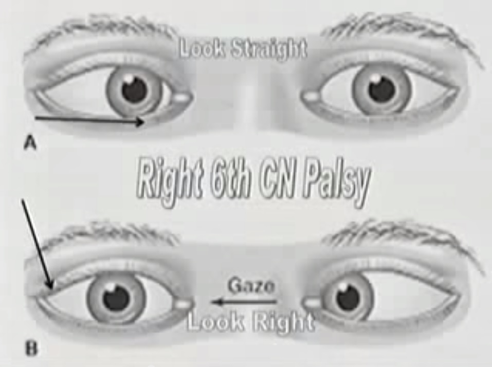 palsy-eye-muscles