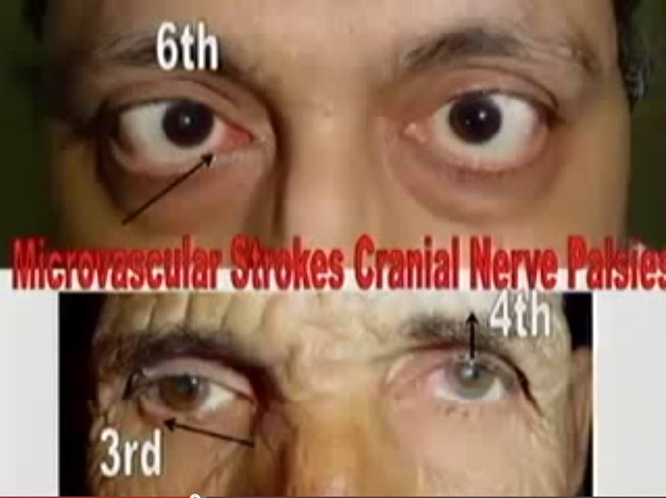 third fourth sixth cranial nerves