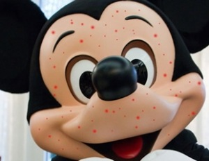 mickey-mouse-with-measles