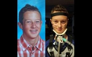 Colton-Berrett-Before-After-HPV-Vaccine-FB