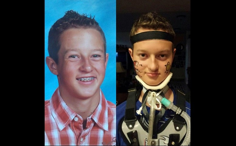 Colton-Berrett-Before-After-HPV-Vaccine-FB