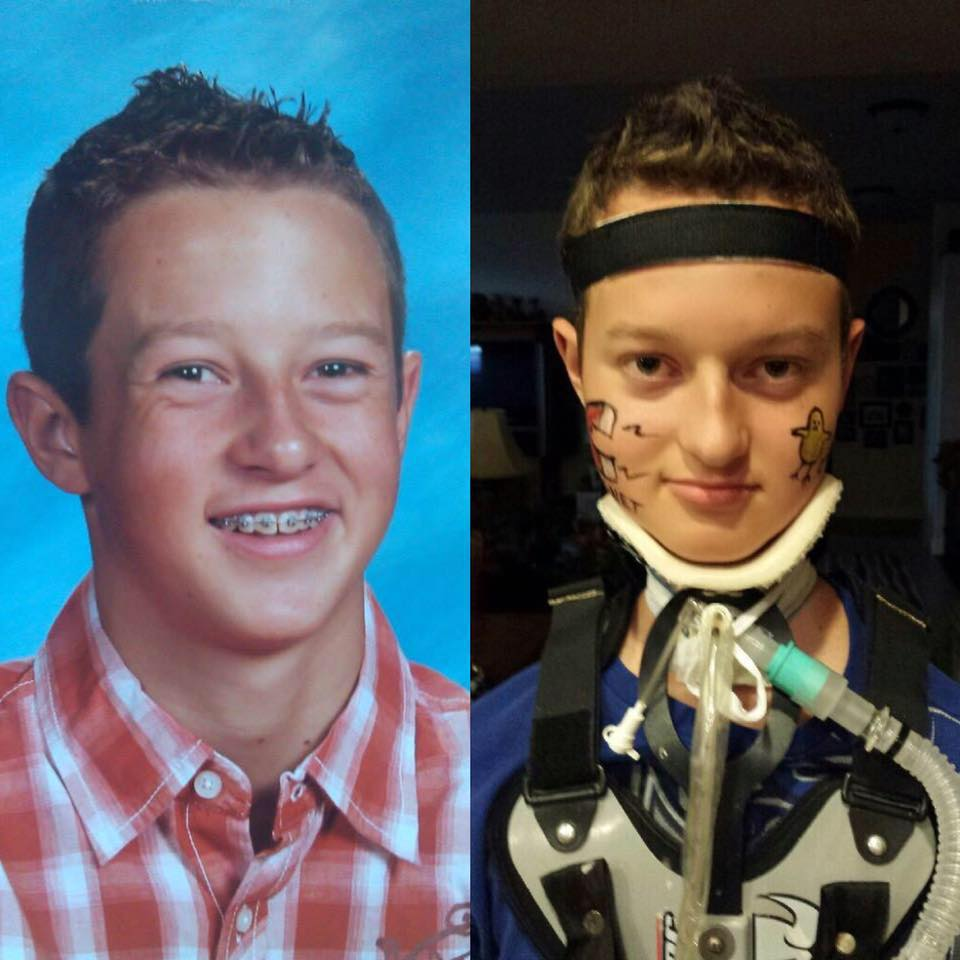 Colton-Berrett-Before-After-HPV-Vaccine