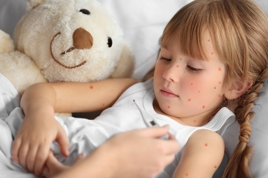 Mother measuring temperature of little girl with red pimples. Chicken pox.