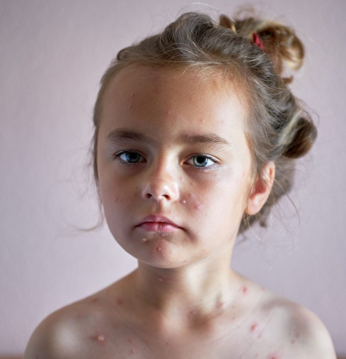Portrait of a lovely 6 years old little girl with chickenpox