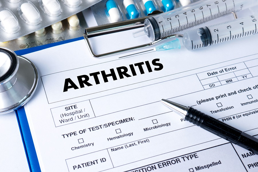 ARTHRITIS medical examination image